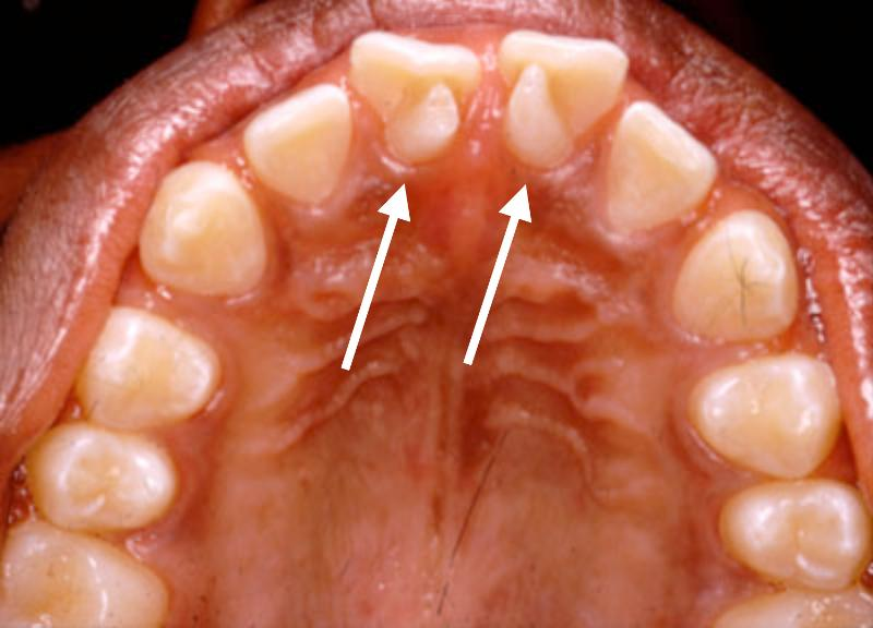 Maxillary molar with dens evaginatus and multiple cusps: Report of ...